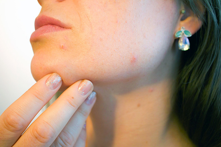 Adult Acne With Dry Skin